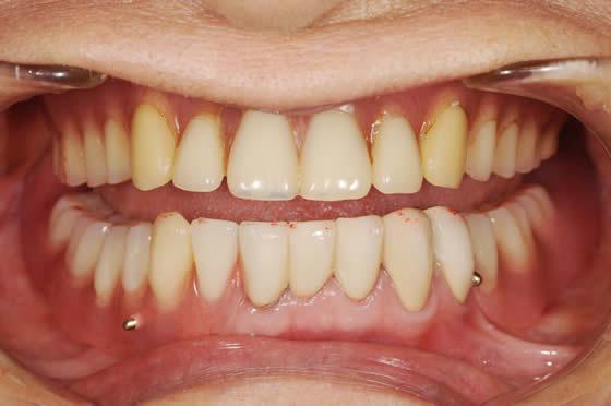 術後コーヌスクローネ義歯装着時