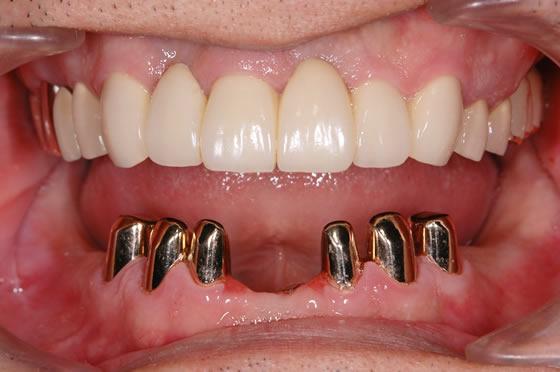 術後下顎コーヌスクローネ義歯取りはずし時