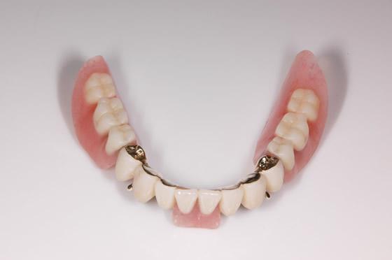 装着コーヌスクローネ義歯