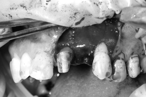 術中 GBR(骨移植)