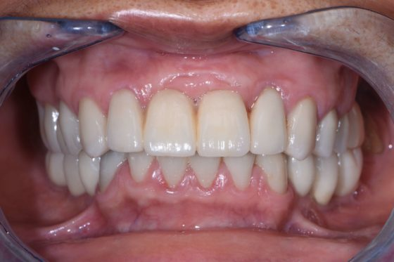 宇部市歯医者