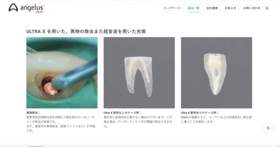宇部市第一歯科